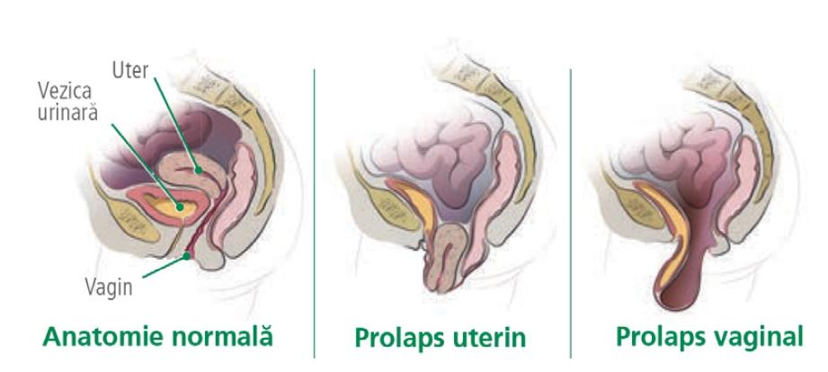 pierdere în greutate prolaps uterin