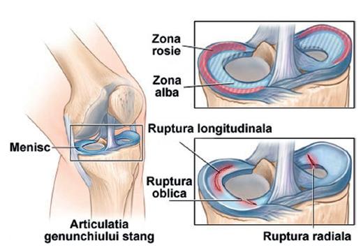 Disfunc?iile dislocarii discului spinarii ?i tratamentul