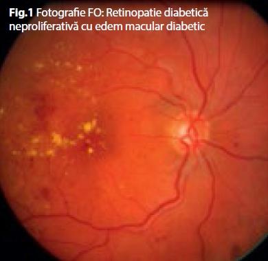 Atenție în Așteptare OK în Edem Macular Diabetic Cu Viziune Bună