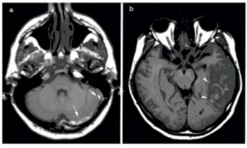 tromboflebita cerebrala